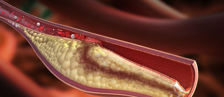 Colesterolo: buono, cattivo, alto