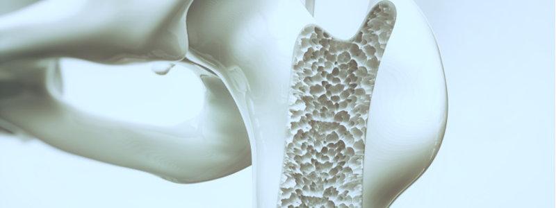 Previeni l'osteoporosi