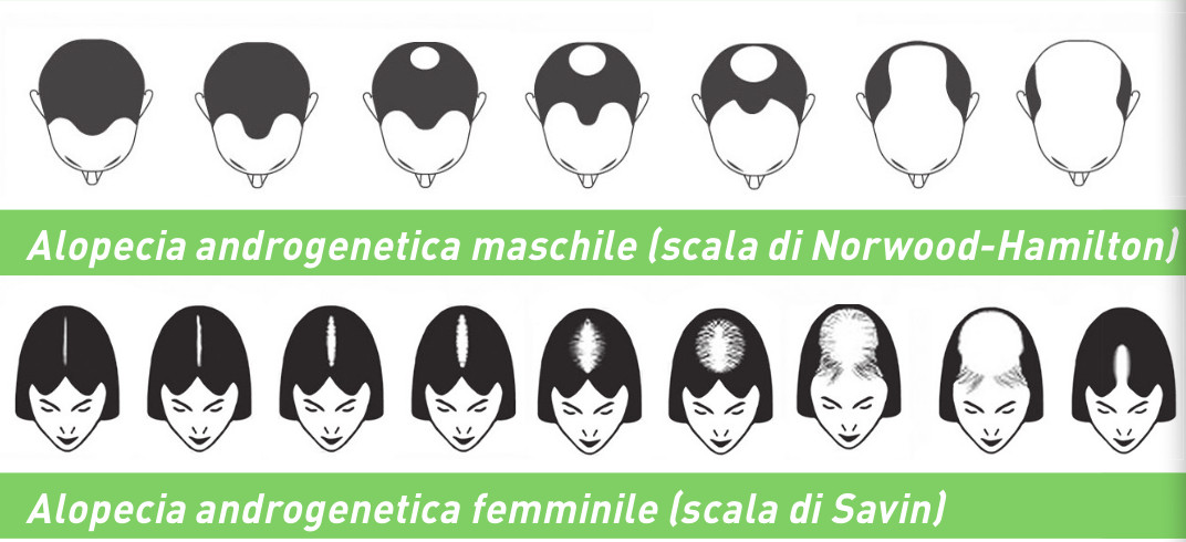 Contrastare l alopecia - Farmacie Comunali Torino Spa 290e52a465fb